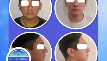 Before and after - Dr. Uribe Rhinoplasty